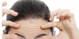 Cómo combatir las arrugas de expresión: Remedios y consejos