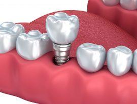 Las ventajas de los implantes dentales que debes conocer