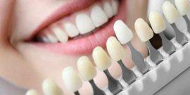 Implantes dentales: ¿Qué cuidados necesitan?