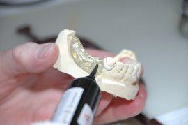 Conoce todos los secretos de las prótesis dentales