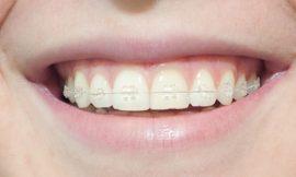 Las claves para un tratamiento de ortodoncia eficaz