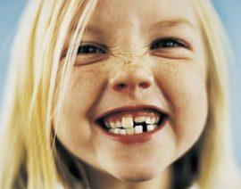 Ortodoncia Interceptiva para corregir el desarrollo oral de los niños