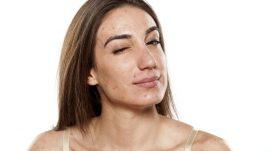 como tratar el acne y las pieles grasas