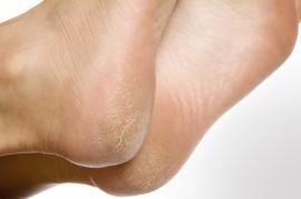 Causas y soluciones de los pies agrietados