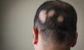 Alopecia areata: Causas y tratamientos