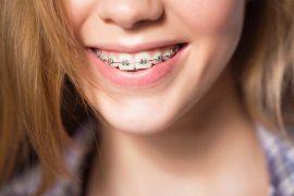 ¿Qué pasa con los tratamientos de ortodoncia durante el estado de alarma por el Covid-19?