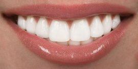 ¿Cómo tener los dientes más blancos?
