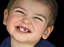 Bruxismo infantil: ¿Cómo identificar y tratar el bruxismo en niños?