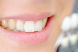 5 hábitos que manchan los dientes