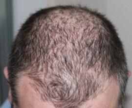 Alopecia Androgénica Masculina: Causas y tratamientos