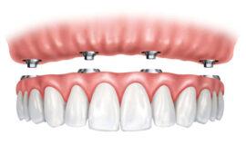 Tipos de prótesis dentales fijas que existen