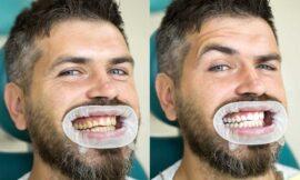 Los riesgos de blanquearse los dientes con remedios caseros