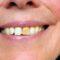 Manchas en los dientes: tipos y tratamientos